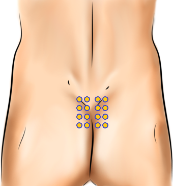 Acupressure Point - Bladder 27-34